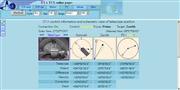ロシアのライブカメラ:ロシア科学アカデミーの「Special Astrophysical Observatory」の口径6m光学式反射望遠鏡からのライブ画像